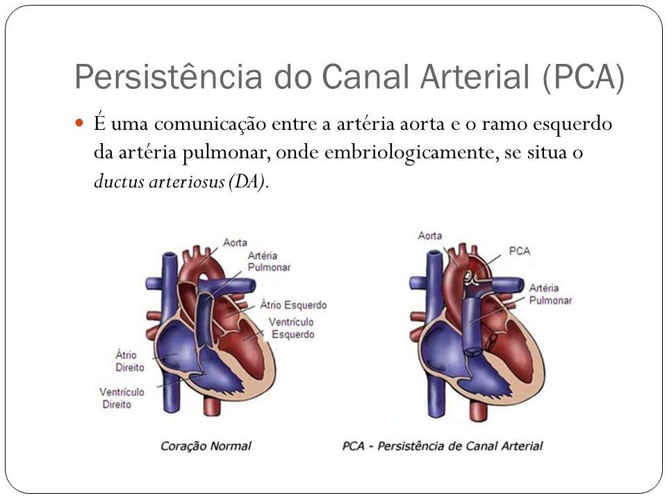 Persistência do Canal Arterial (PCA) É uma comunicação entre a artéria aorta e o ramo esquerdo da artéria pulmonar, onde embriologicamente, se situa o ductus arteriosus (DA).