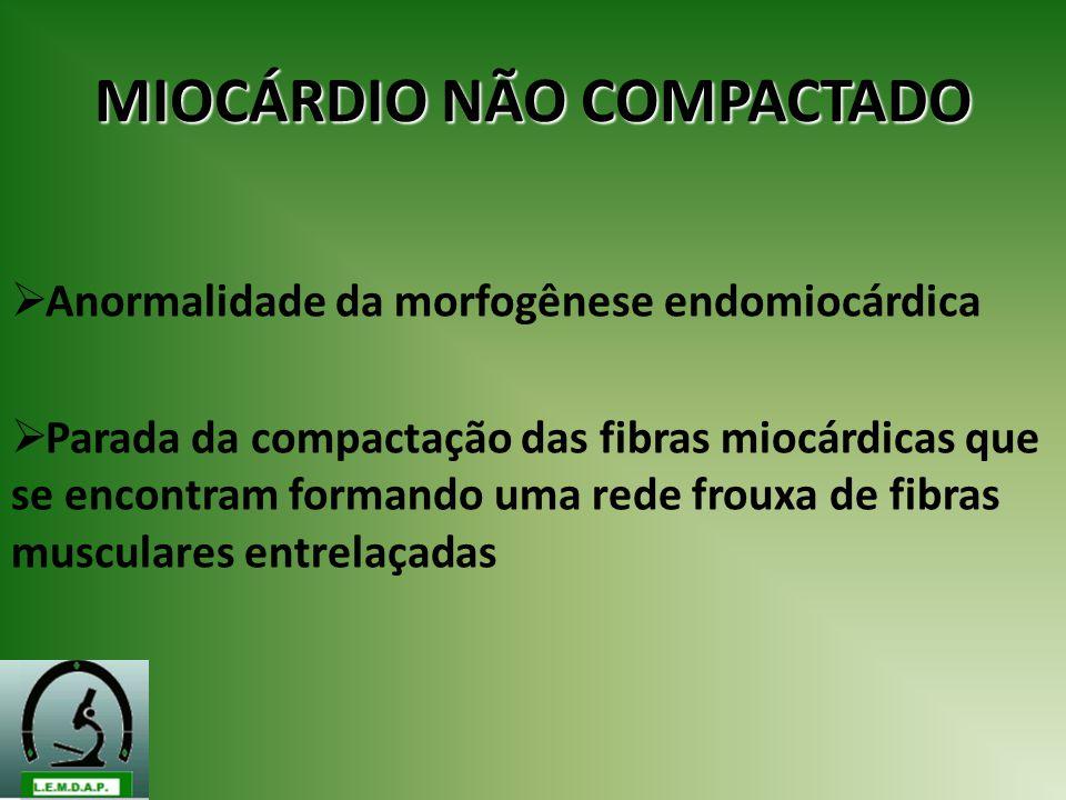 MIOCÁRDIO NÃO COMPACTADO Anormalidade da morfogênese endomiocárdica Parada da compactação das fibras miocárdicas que se encontram formando uma rede fr