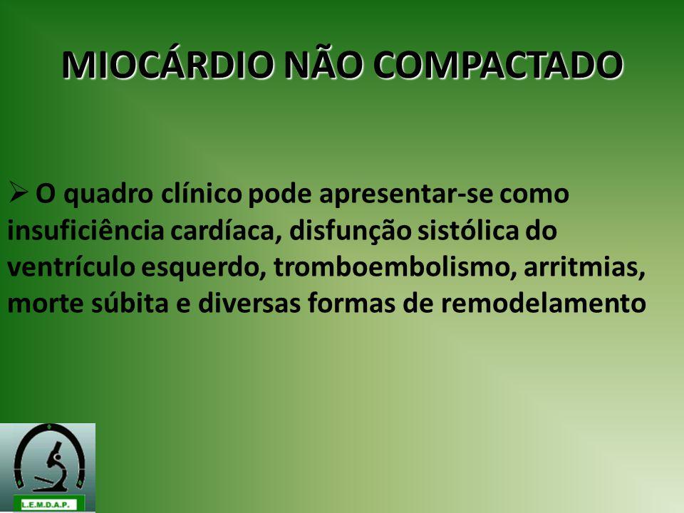 MIOCÁRDIO NÃO COMPACTADO O quadro clínico pode apresentar-se como insuficiência cardíaca, disfunção sistólica do ventrículo esquerdo, tromboembolismo,