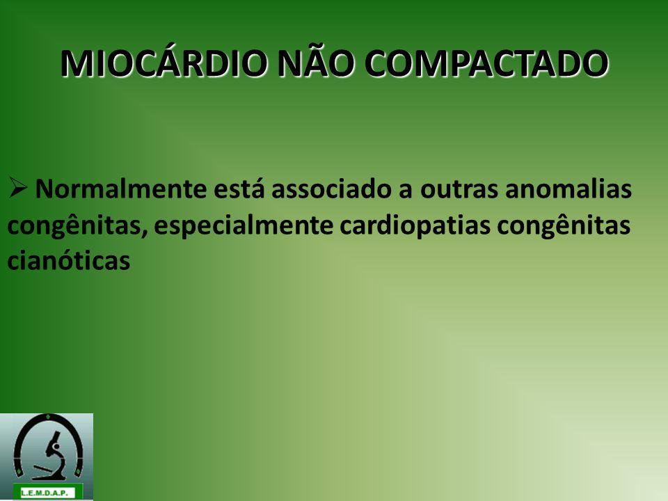 MIOCÁRDIO NÃO COMPACTADO Normalmente está associado a outras anomalias congênitas, especialmente cardiopatias congênitas cianóticas