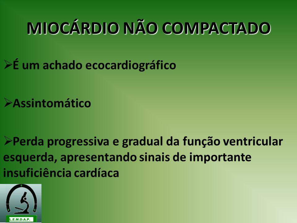 MIOCÁRDIO NÃO COMPACTADO É um achado ecocardiográfico Assintomático Perda progressiva e gradual da função ventricular esquerda, apresentando sinais de