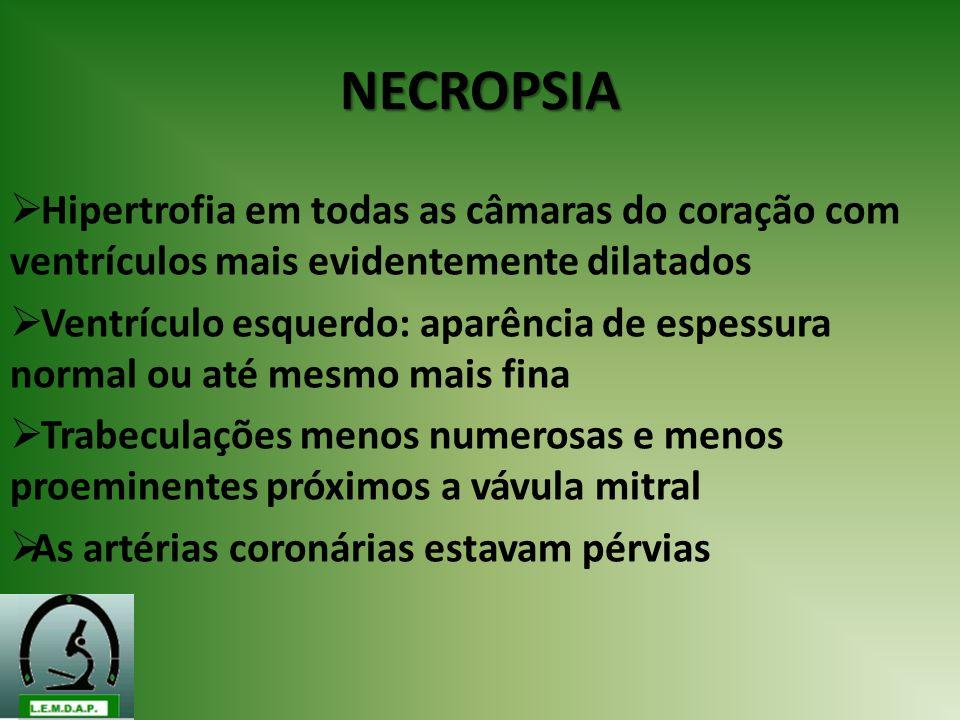 NECROPSIA Hipertrofia em todas as câmaras do coração com ventrículos mais evidentemente dilatados Ventrículo esquerdo: aparência de espessura normal o