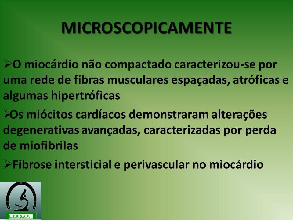MICROSCOPICAMENTE O miocárdio não compactado caracterizou-se por uma rede de fibras musculares espaçadas, atróficas e algumas hipertróficas Os miócito