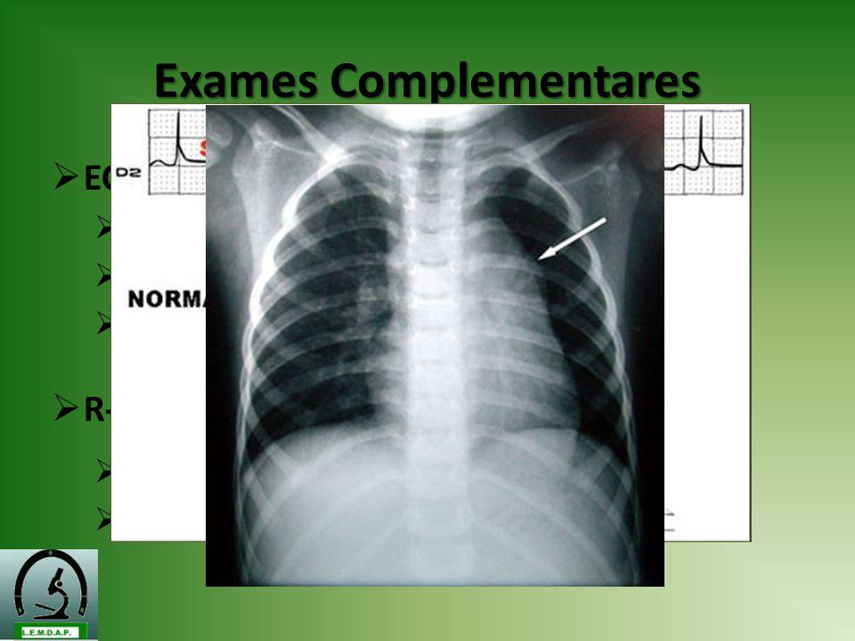 Exames Complementares ECG Sobrecarga atrial D Alteração da repolarização ventricular Retificação do segmento ST R-X Aumento área cardíaca Abaulamento