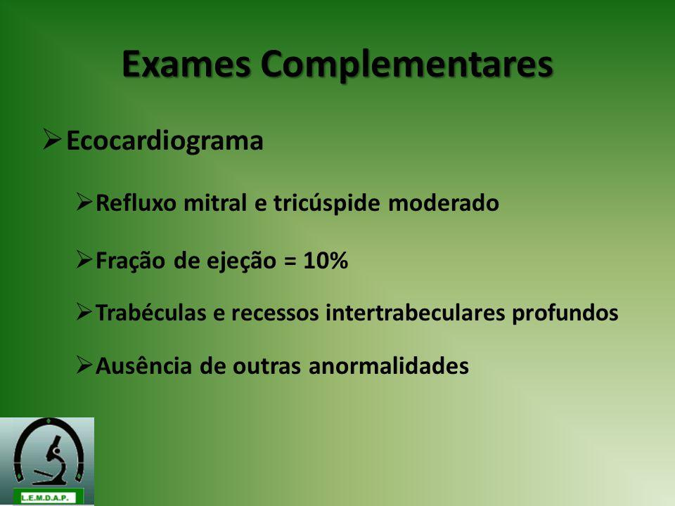 Exames Complementares Ecocardiograma Refluxo mitral e tricúspide moderado Fração de ejeção = 10% Trabéculas e recessos intertrabeculares profundos Aus