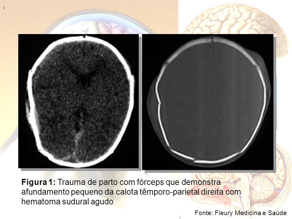 ). Fonte: Fleury Medicina e Saúde Figura 1: Trauma de parto com fórceps que demonstra afundamento pequeno da calota têmporo-parietal direita com hemat