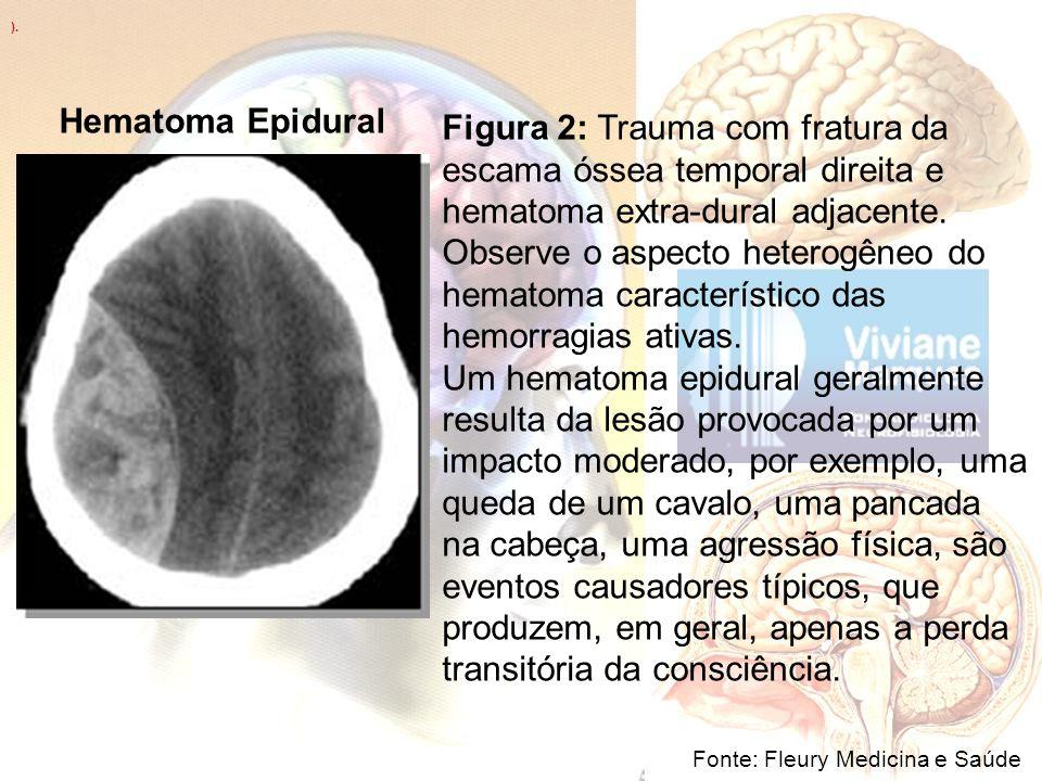 ). Fonte: Fleury Medicina e Saúde Figura 2: Trauma com fratura da escama óssea temporal direita e hematoma extra-dural adjacente. Observe o aspecto he