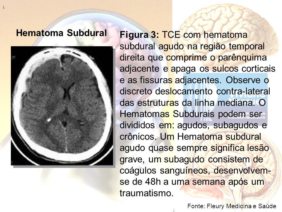 ). Fonte: Fleury Medicina e Saúde Figura 3: TCE com hematoma subdural agudo na região temporal direita que comprime o parênquima adjacente e apaga os