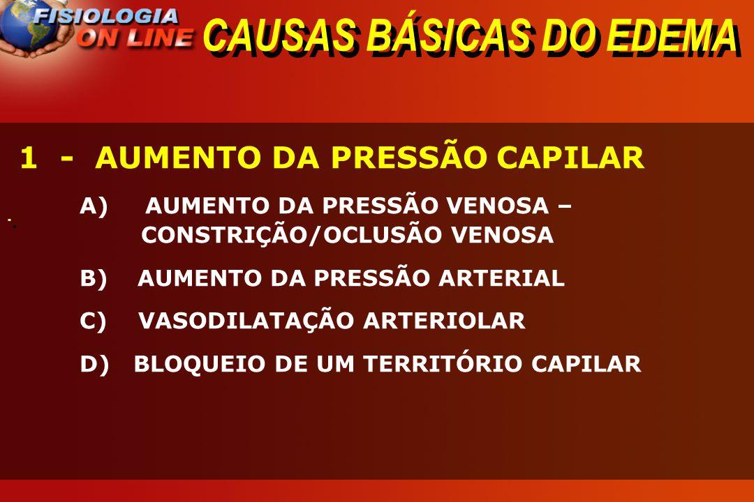 CAUSAS BÁSICAS DO EDEMA · · 1 - AUMENTO DA PRESSÃO CAPILAR A) AUMENTO DA PRESSÃO VENOSA – CONSTRIÇÃO/OCLUSÃO VENOSA B) AUMENTO DA PRESSÃO ARTERIAL C)