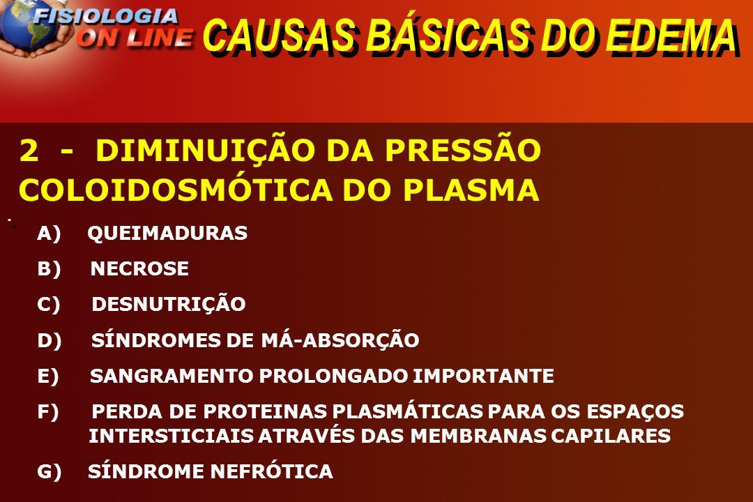 CAUSAS BÁSICAS DO EDEMA · · 2 - DIMINUIÇÃO DA PRESSÃO COLOIDOSMÓTICA DO PLASMA A) QUEIMADURAS B) NECROSE C) DESNUTRIÇÃO D) SÍNDROMES DE MÁ-ABSORÇÃO E)