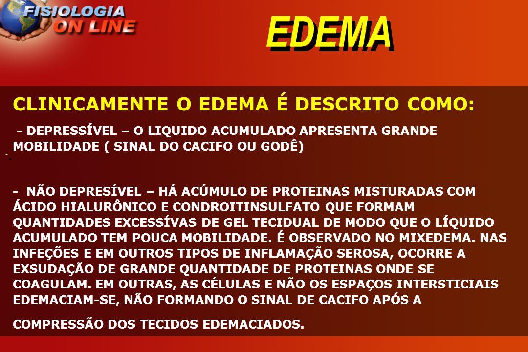 EDEMA · · CLINICAMENTE O EDEMA É DESCRITO COMO: - DEPRESSÍVEL – O LIQUIDO ACUMULADO APRESENTA GRANDE MOBILIDADE ( SINAL DO CACIFO OU GODÊ) - NÃO DEPRE