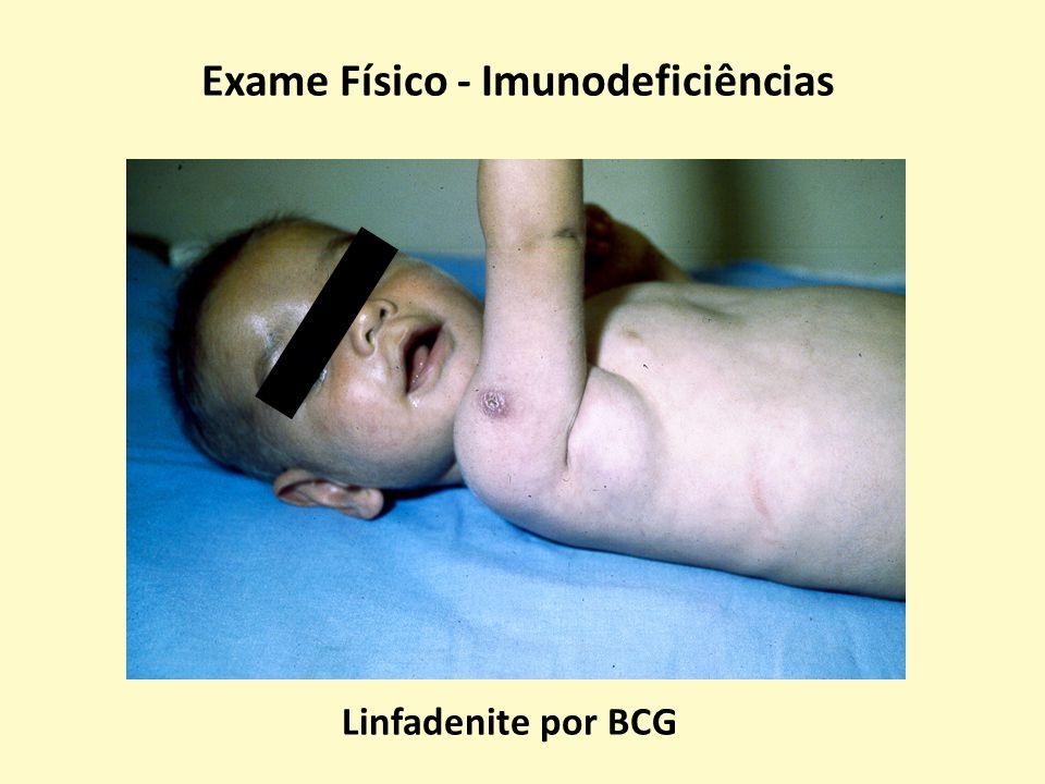 Exames de Imagem – Imunodeficiências Abscesso Hepático – Doença Granulomatosa Crônica Garcia-Eulate R et al.
