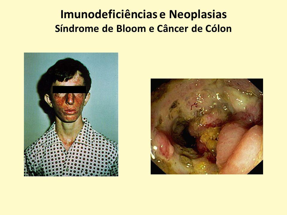 Imunodeficiências Primárias Triagem laboratorial