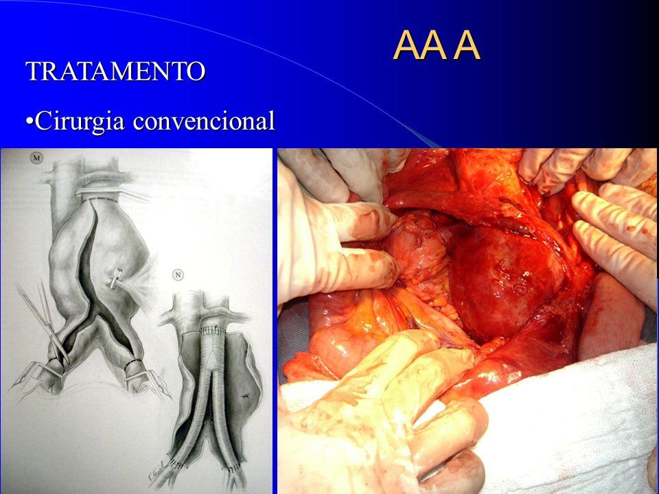 AA A TRATAMENTO Cirurgia convencionalCirurgia convencional