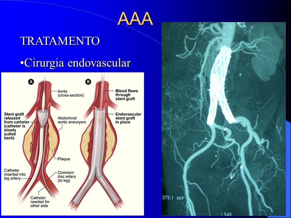 TRATAMENTO Cirurgia endovascularCirurgia endovascularAAA