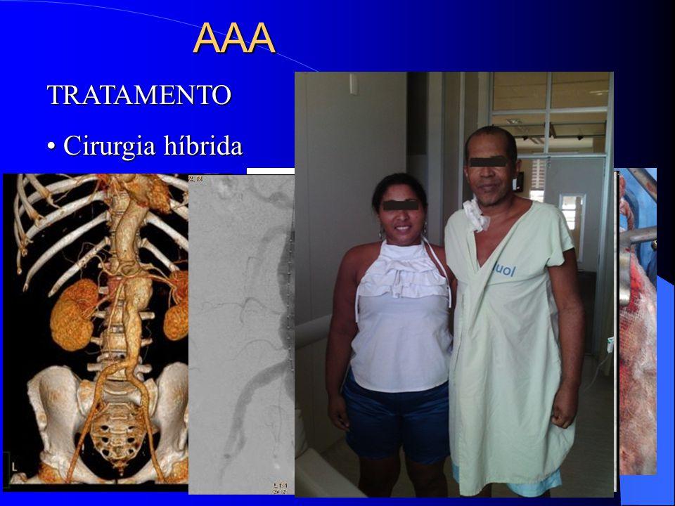 AAA TRATAMENTO Cirurgia híbrida Cirurgia híbrida