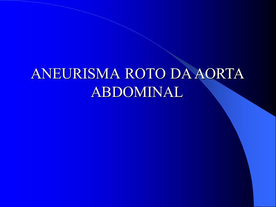 ANEURISMA ROTO DA AORTA ABDOMINAL