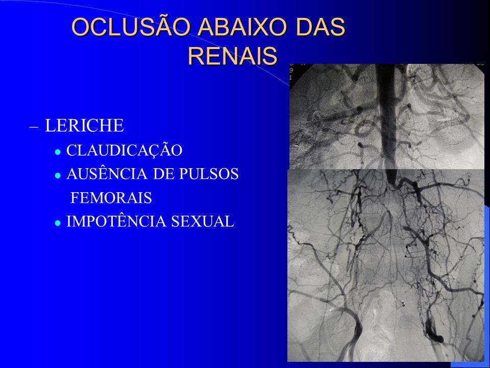 OCLUSÃO ABAIXO DAS RENAIS – LERICHE CLAUDICAÇÃO AUSÊNCIA DE PULSOS FEMORAIS IMPOTÊNCIA SEXUAL