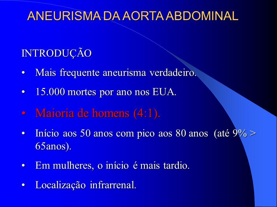 INTRODUÇÃO Mais frequente aneurisma verdadeiro.Mais frequente aneurisma verdadeiro.