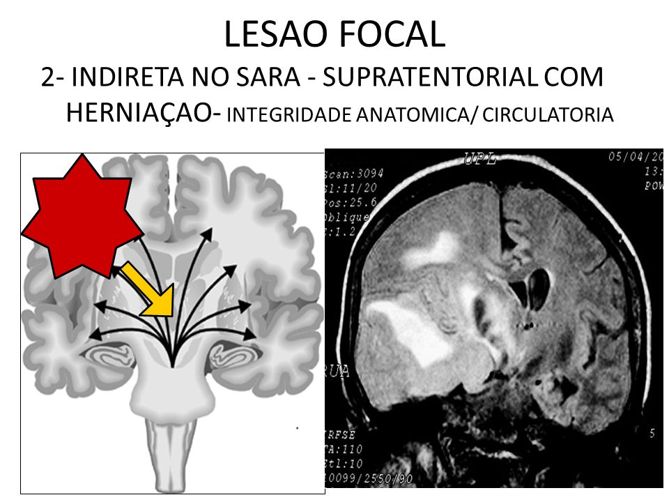 LESAO FOCAL 2- INDIRETA NO SARA - SUPRATENTORIAL COM HERNIAÇAO- INTEGRIDADE ANATOMICA/ CIRCULATORIA