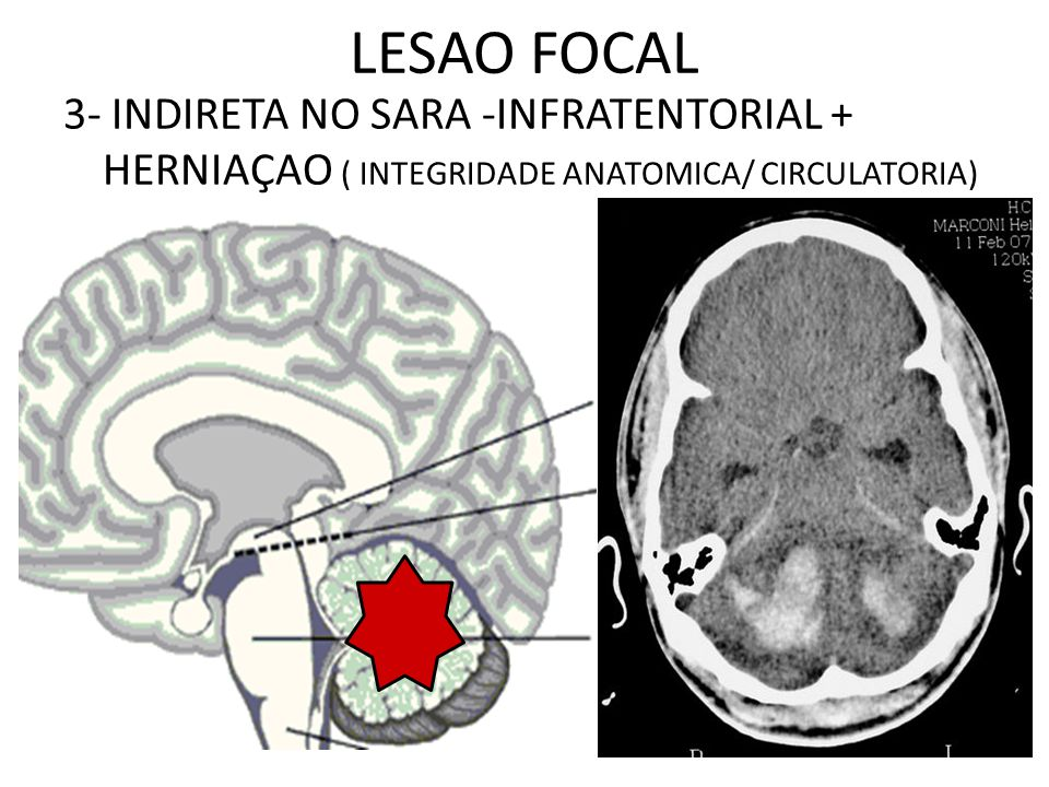 3- INDIRETA NO SARA -INFRATENTORIAL + HERNIAÇAO ( INTEGRIDADE ANATOMICA/ CIRCULATORIA) LESAO FOCAL