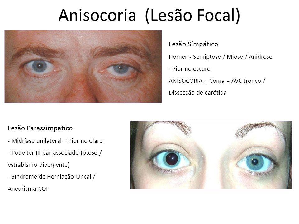 Anisocoria (Lesão Focal) Lesão Símpático Horner - Semiptose / Miose / Anidrose - Pior no escuro ANISOCORIA + Coma = AVC tronco / Dissecção de carótida Lesão Parassímpatico - Midríase unilateral – Pior no Claro - Pode ter III par associado (ptose / estrabismo divergente) - Síndrome de Herniação Uncal / Aneurisma COP