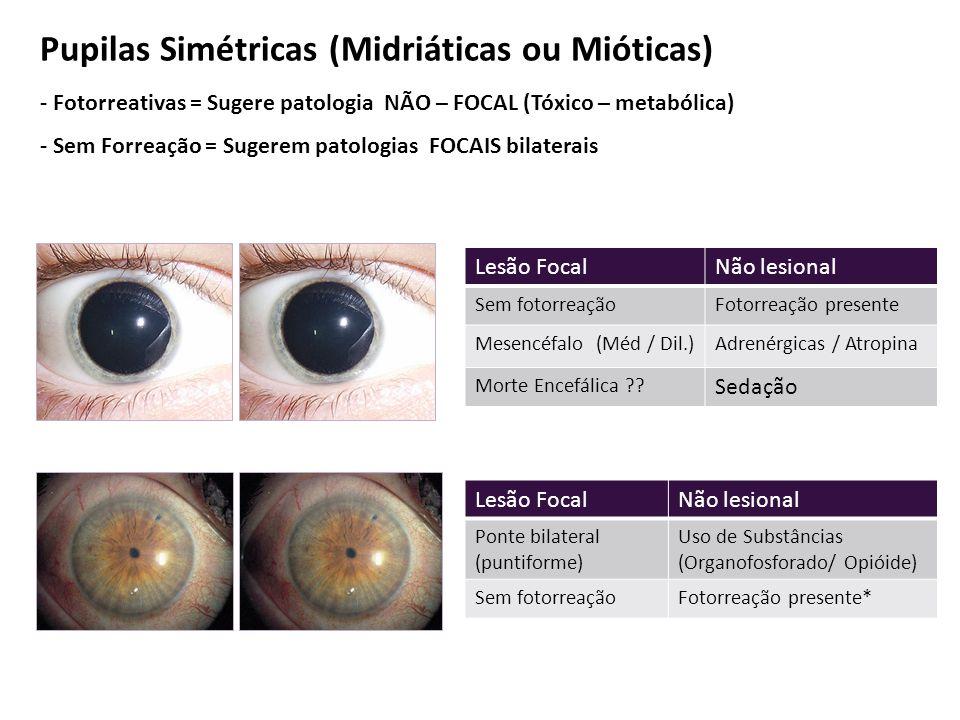Lesão FocalNão lesional Sem fotorreaçãoFotorreação presente Mesencéfalo (Méd / Dil.)Adrenérgicas / Atropina Morte Encefálica ?.