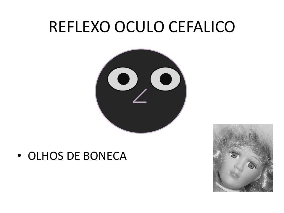 REFLEXO OCULO CEFALICO OLHOS DE BONECA