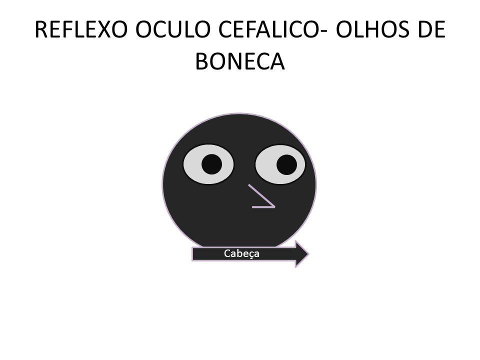 REFLEXO OCULO CEFALICO- OLHOS DE BONECA Cabeça