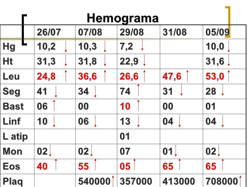 Hemograma 26/0707/0829/0831/0805/09 Hg10,210,37,210,0 Ht31,331,822,931,6 Leu24,836,626,647,653,0 Seg4134743128 Bast0600100001 Linf1006130404 L atip 01