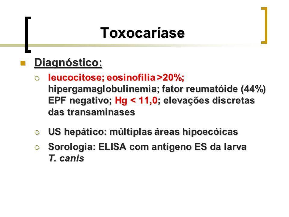 Toxocaríase Diagnóstico: Diagnóstico: leucocitose; eosinofilia >20%; hipergamaglobulinemia; fator reumatóide (44%) EPF negativo; Hg 20%; hipergamaglob