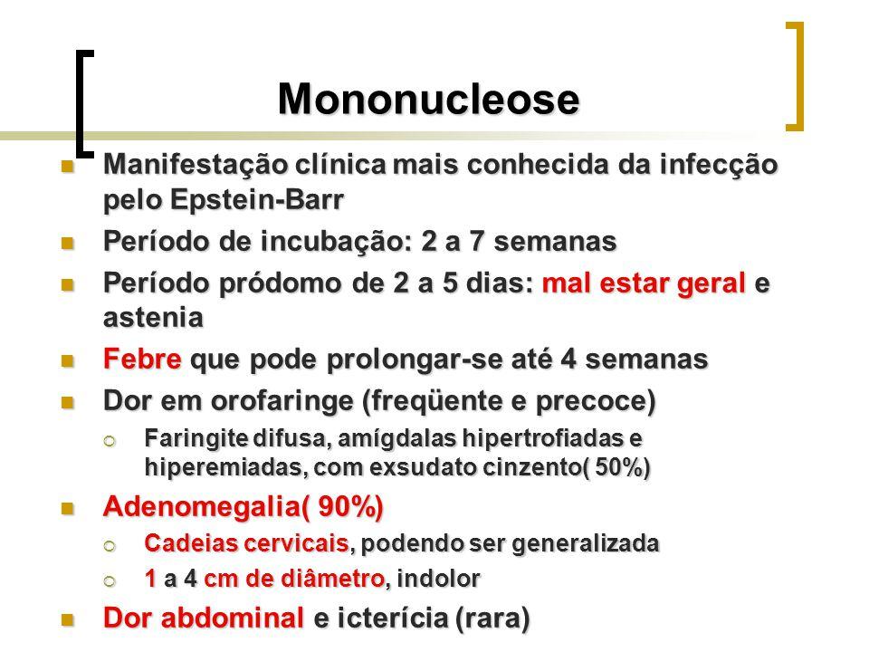 Mononucleose Manifestação clínica mais conhecida da infecção pelo Epstein-Barr Manifestação clínica mais conhecida da infecção pelo Epstein-Barr Perío