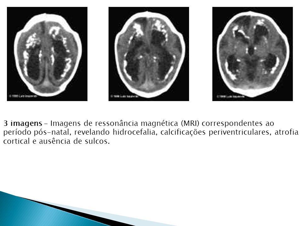 3 imagens - Imagens de ressonância magnética (MRI) correspondentes ao período pós-natal, revelando hidrocefalia, calcificações periventriculares, atro
