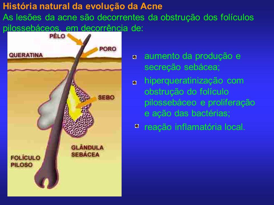 História natural da evolução da Acne As lesões da acne são decorrentes da obstrução dos folículos pilossebáceos, em decorrência de: aumento da produçã