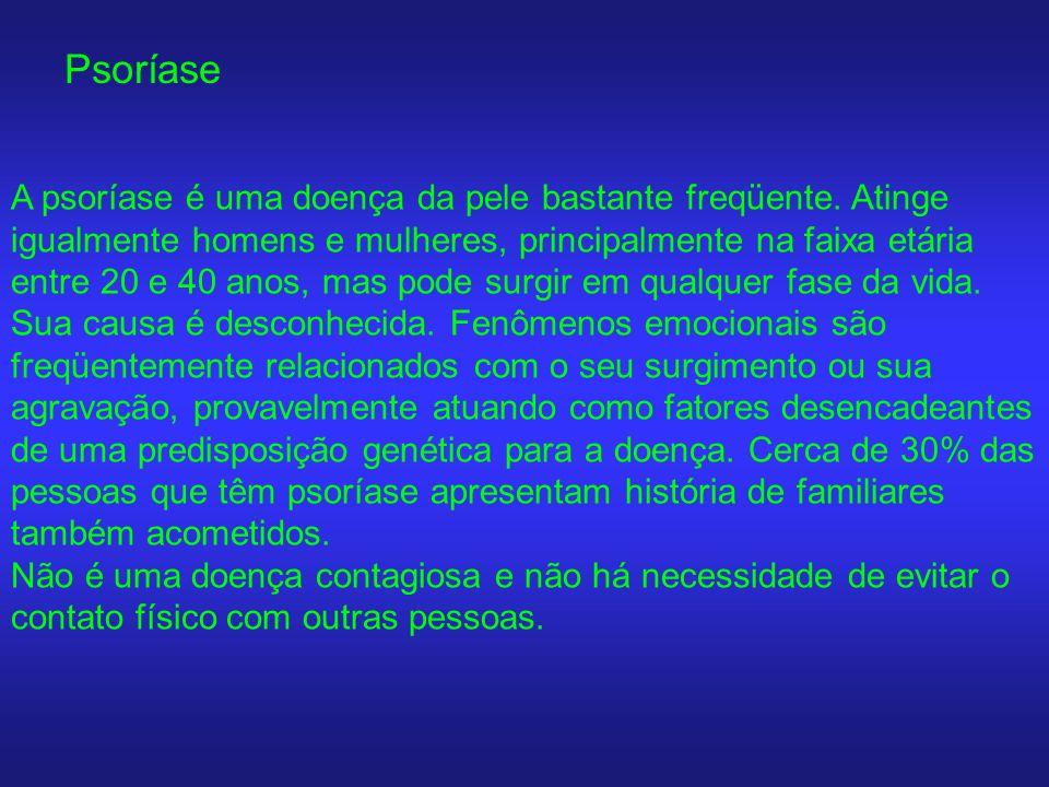 Psoríase A psoríase é uma doença da pele bastante freqüente. Atinge igualmente homens e mulheres, principalmente na faixa etária entre 20 e 40 anos, m