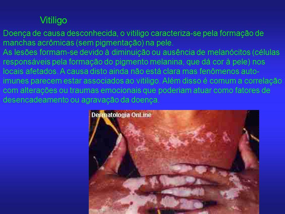 Vitiligo Doença de causa desconhecida, o vitiligo caracteriza-se pela formação de manchas acrômicas (sem pigmentação) na pele. As lesões formam-se dev