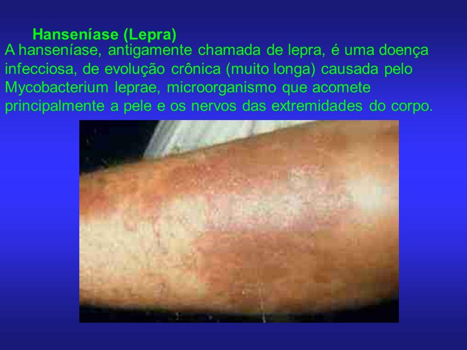 Hanseníase (Lepra) A hanseníase, antigamente chamada de lepra, é uma doença infecciosa, de evolução crônica (muito longa) causada pelo Mycobacterium l