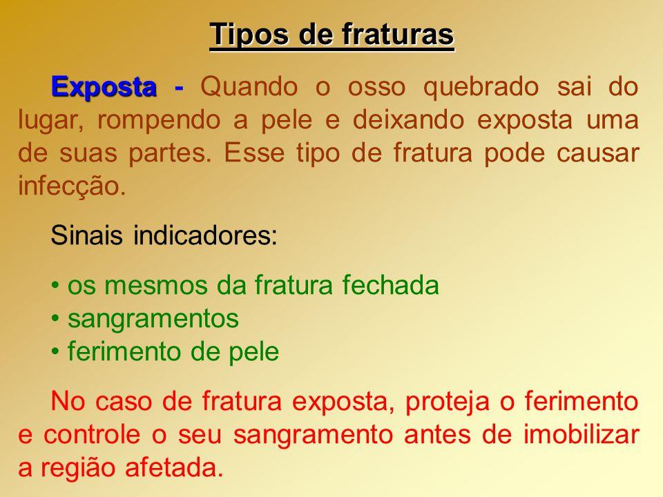Tipos de fraturas Fechada Fechada - Quando ocorre quebra de osso,sem atravessar a pele.