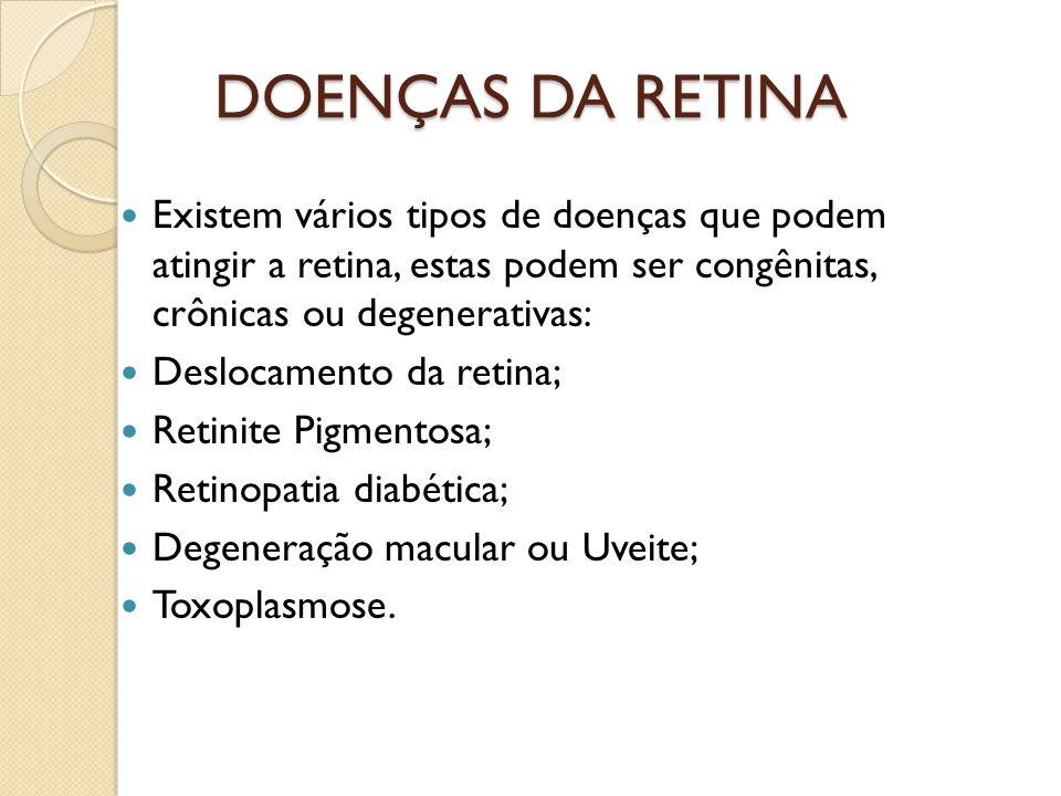 DESLOCAMENTO DE RETINA Quando a retina desprende do globo ocular, geralmente por acumulo de líquido atrás de suas camadas; Quando ocorre o deslocamento há a interrupção da transmissão nervosa e a imagem não é transmitida para o cérebro; Os primeiros sintomas são flashs de luz na frente da visão; Tratamento cirúrgico com urgência.