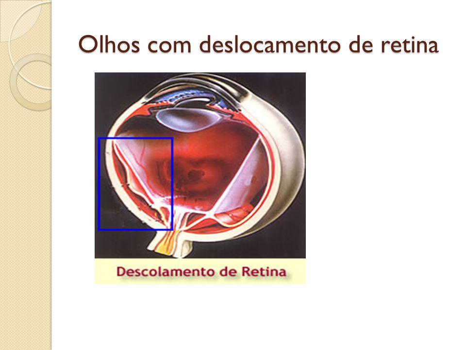 RETINITE PIGMENTOSA Distúrbio hereditário muito raro no qual a retina degenera de modo lento e progressivo levando a cegueira, em algumas pessoas, principalmente nos homens também ocorre uma forma hereditária de perda na audição; Os primeiros sintomas começam na infancia, nos estágios mais avançados o individuo apresenta uma pequena area central da visão e pouca visão periférica, daí o diagnostico; Não existe tratamento que retarde esta lesão.
