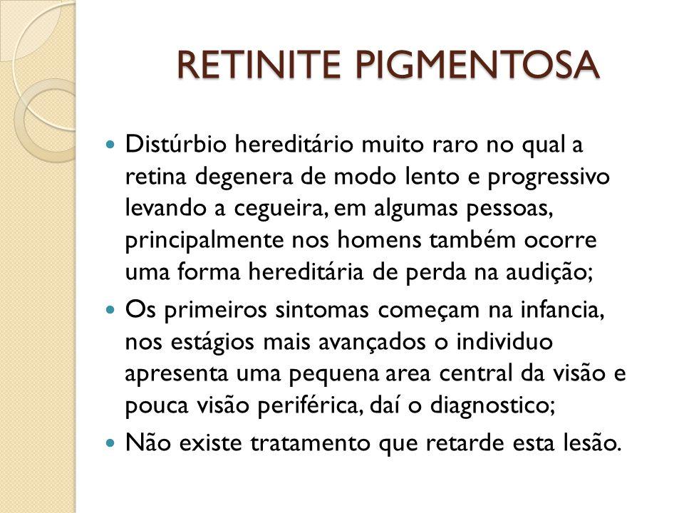 RETINOPATIA DIABÉTICA Principal causa de cegueira entre pessoas de 20 a 60 anos; Alterações como catarata, glaucoma e retinopatia diabética ocorre em cerca de 90% dos diabéticos com mais de 25 anos de doença; Já é possível reduzir drasticamente a cegueira devido a diabete, um dos fatores mais importantes para o sucesso do tratamento é diagnosticar cedo; Existe também a degeneração macular relacionada a idade.