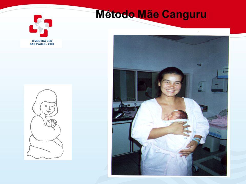 Método Mãe Canguru