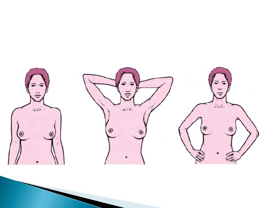 3 - Períneo Inspeção e palpação: paciente em posição litotômica, erguer o escroto.