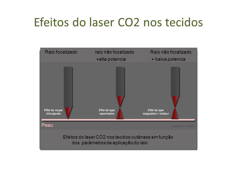 Efeitos do laser CO2 nos tecidos Efeitos do laser CO2 nos tecidos cutâneos em função dos parâmetros de aplicação do raio Raio focalizado raio não foca