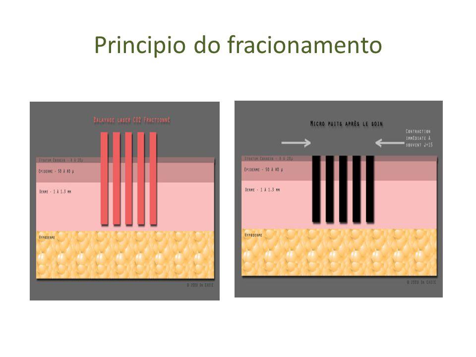 Funcionamento do laser CO2 e interação com a pele Cromóforo é a AGUA Vaporização da água na camada superficial (epiderme) Aquecimento da camada dérmica Remodelagem e síntese do colágeno Efeito térmico e ablativo