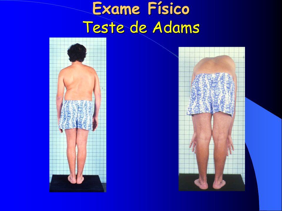 Exame Físico Teste de Adams