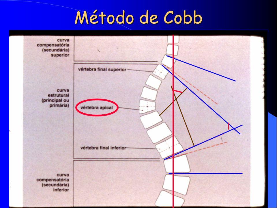 Método de Cobb