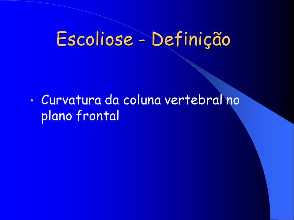 Escoliose - Definição Curvatura da coluna vertebral no plano frontal
