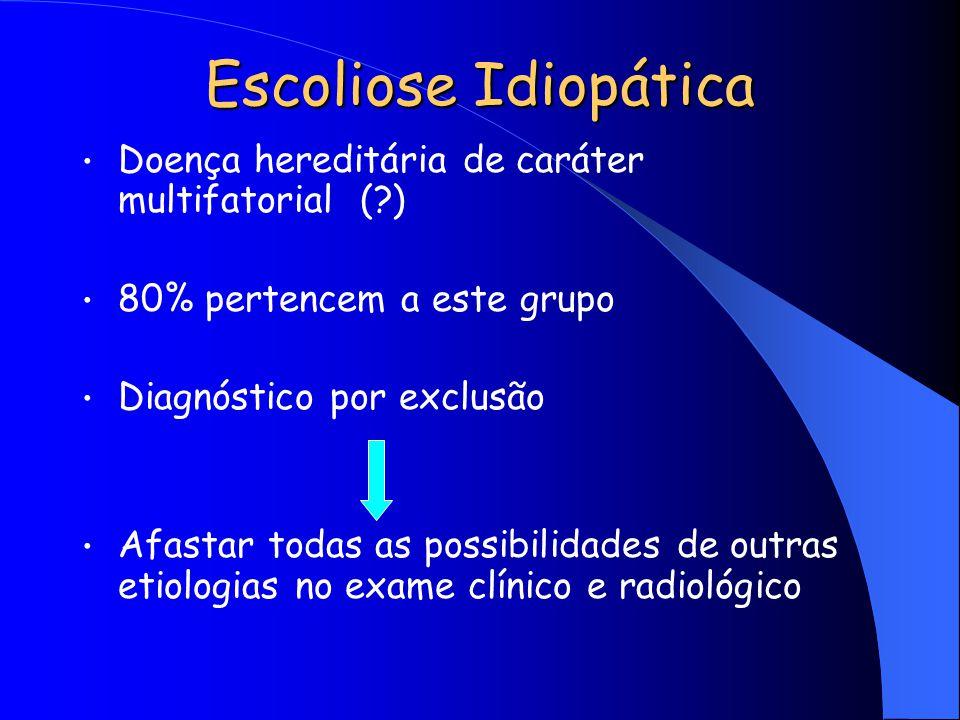 Escoliose Idiopática Doença hereditária de caráter multifatorial (?) 80% pertencem a este grupo Diagnóstico por exclusão Afastar todas as possibilidad