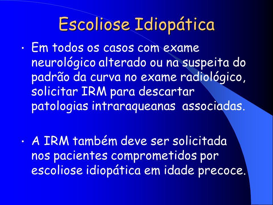 Em todos os casos com exame neurológico alterado ou na suspeita do padrão da curva no exame radiológico, solicitar IRM para descartar patologias intra